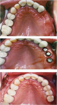 pre i posle implanti vilica