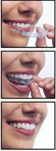 aplikacija zubnog treja