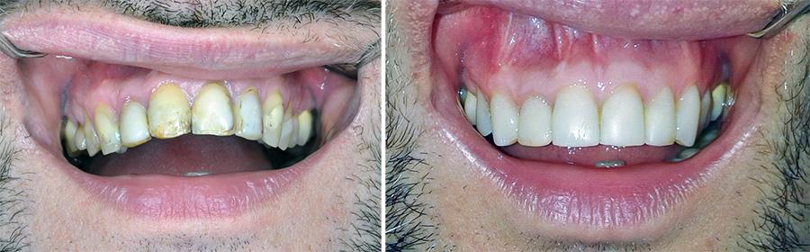 Olovka za izbeljivanje zuba kako se koristi