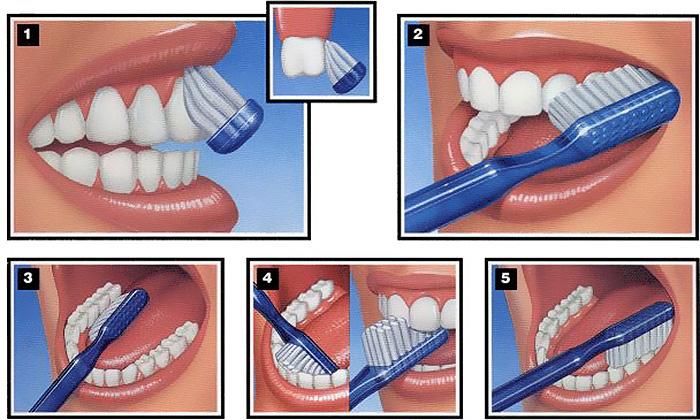 Kako koristiti aktivni ugalj za zube