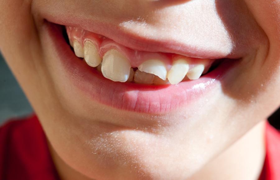 Folije za zube iskustva