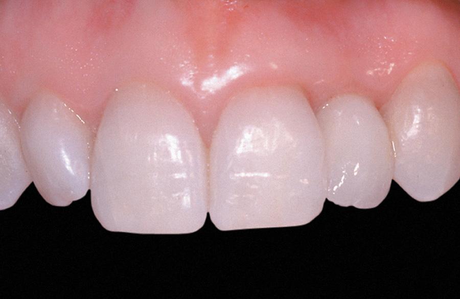 Zubni implanti posle intervencije