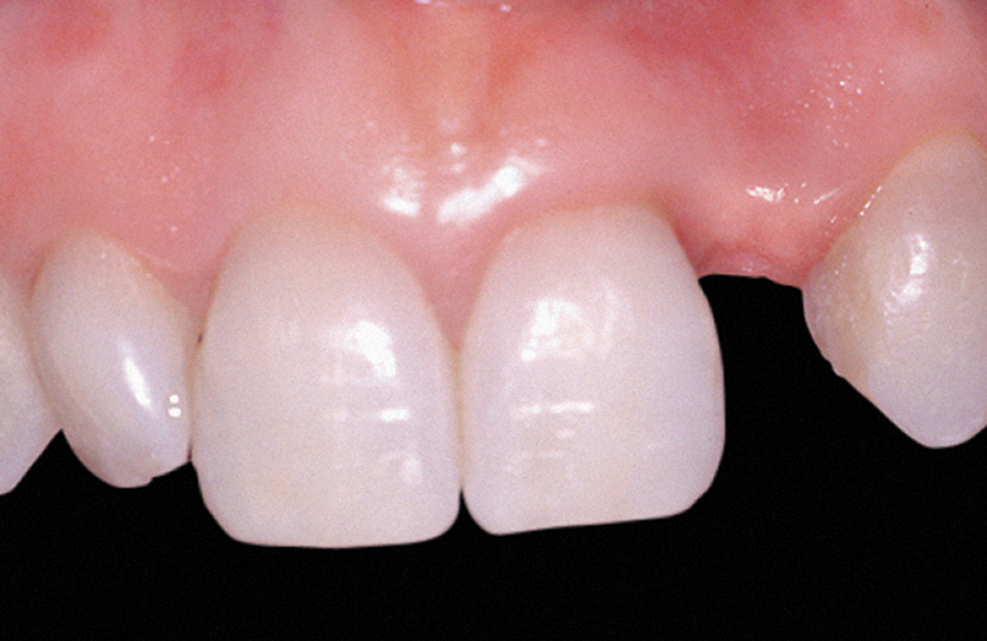 Zubni implanti pre intervencije